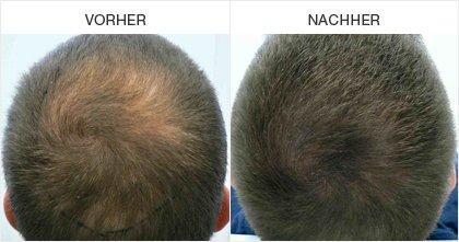 Mikropigmentation - Vorher / Nachher