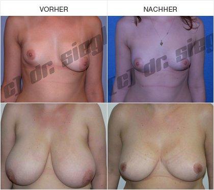 Bruststraffung / Brustverkleinerung - Vorher / Nachher