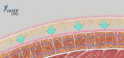 Vaser Fettabsaugung - Heilung und Straffung des Gewebes