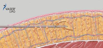 Vaser Fettabsaugung - Liposuction